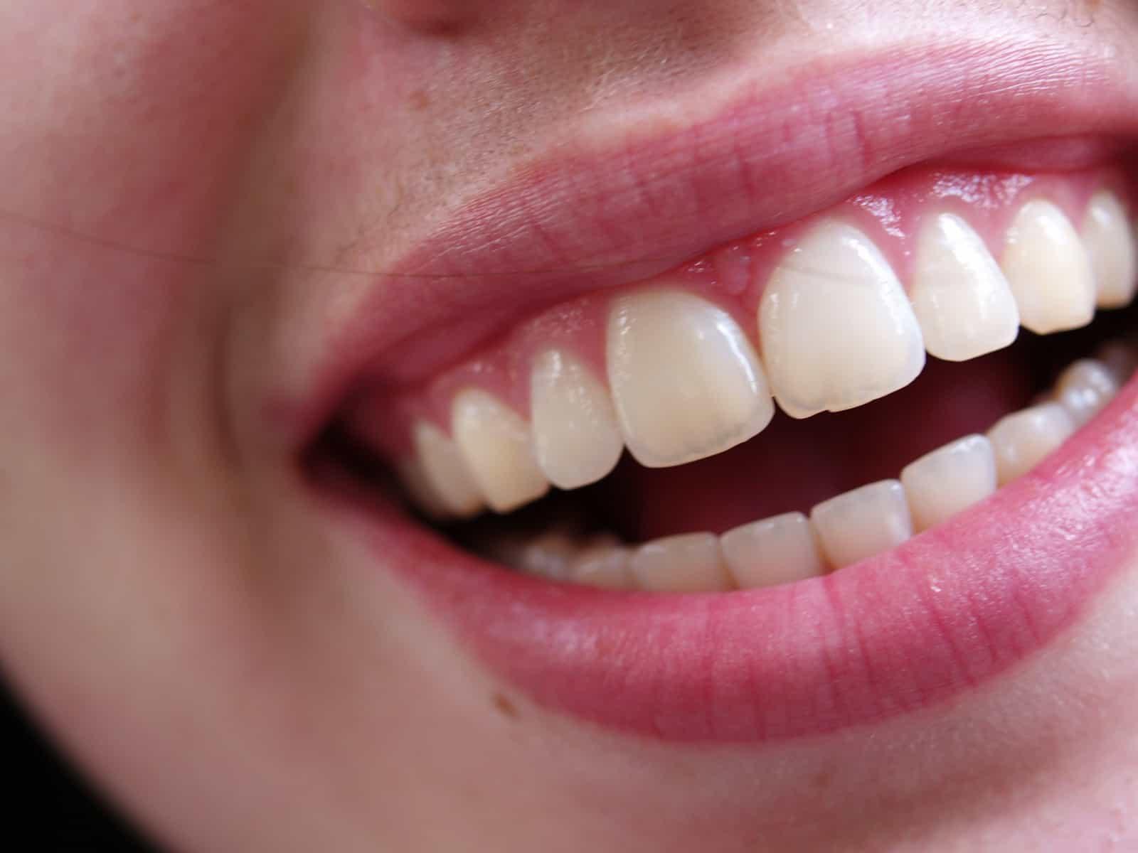 Tooth bonding - Dental Touch Associates - Cedar Rapids