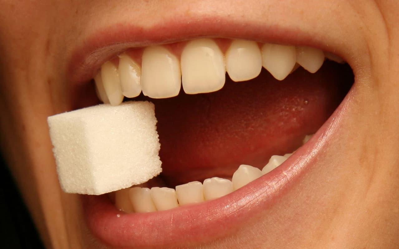 Sugar cause yellow teeth - Cedar Rapids, IA - Dental Touch Associates