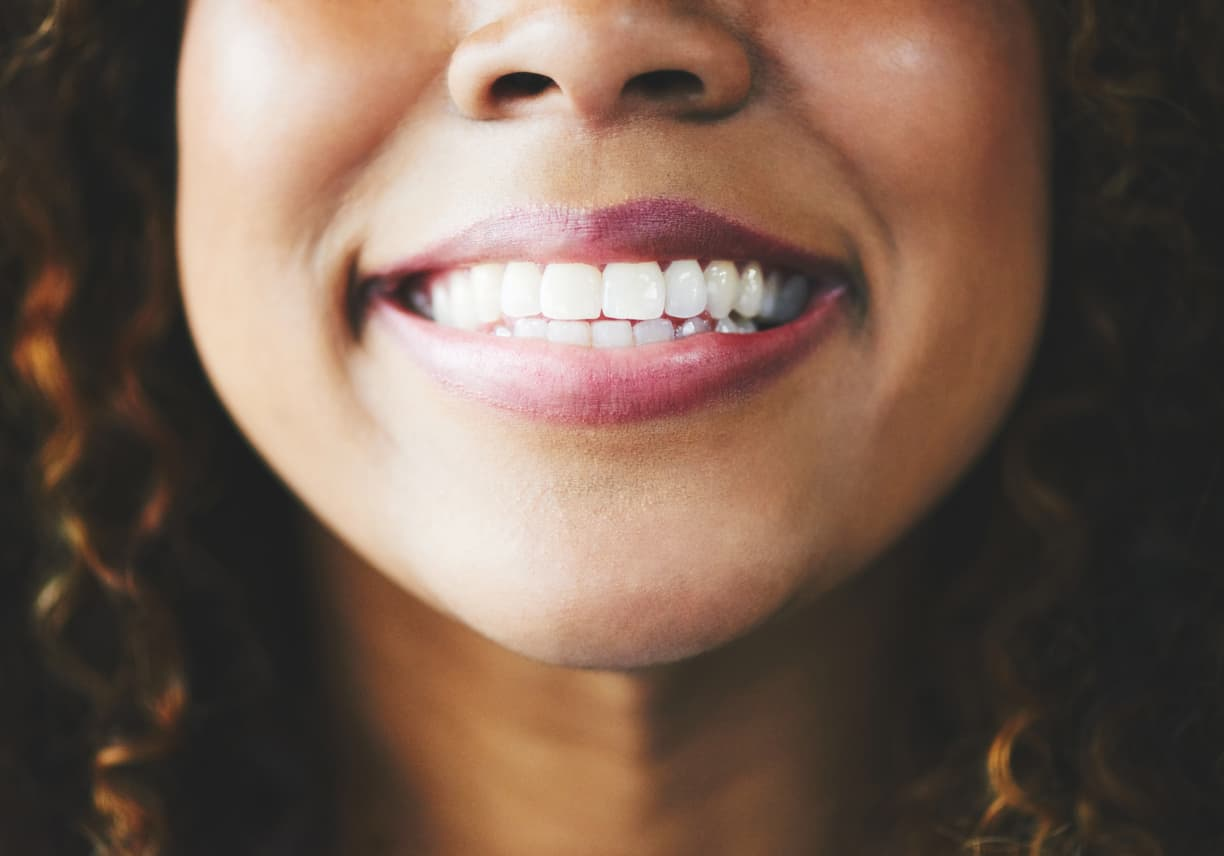 You Deserve a Perfect Smile| Cosmetic Dentistry | Dental Touch Blog
