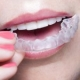 Answers For Adults Looking Into Invisalign