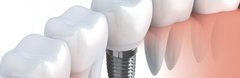 Dental Implants Can Last A Lifetime