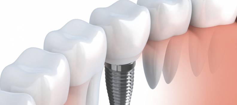 Dental Implants Can Last A Lifetime