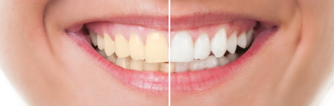 Teeth Whitening Brightens Your Smile